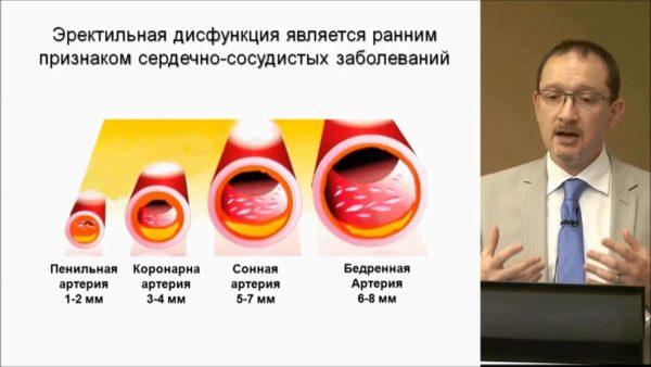 Эректильная дисфункция является ранним признаком сердечно-сосудистых заболеваний
