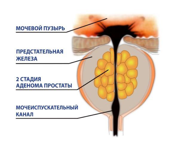 II-я стадия гиперплазии характеризуется заметным сужением мочеточника