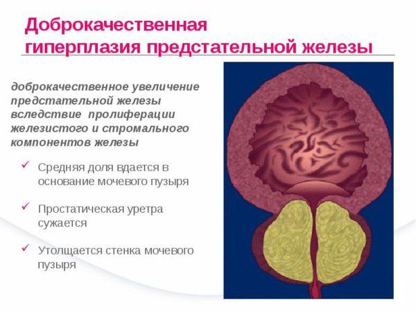 Изменения в предстательной железе при ее доброкачественной гиперплазии