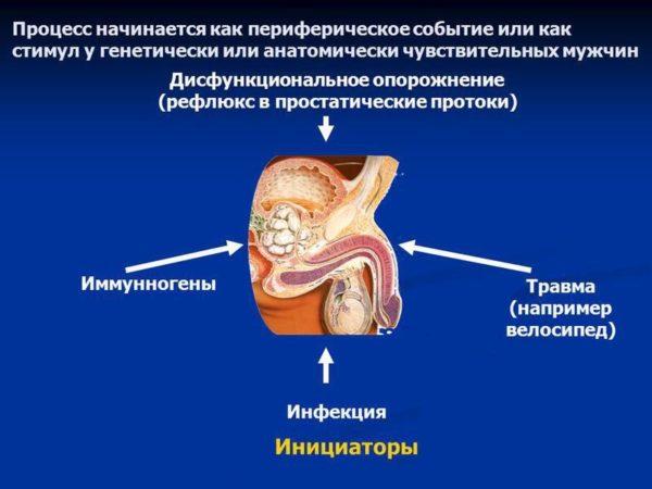 Причины синдрома хронической тазовой боли