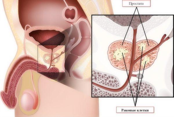 Рак простаты характеризуется быстрыми темпами метастазирования