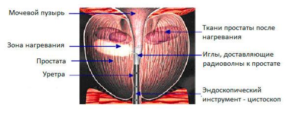 Трансуретральная игольчатая абляция