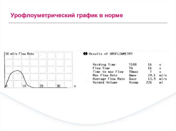 Урофлоуметрический график в норме