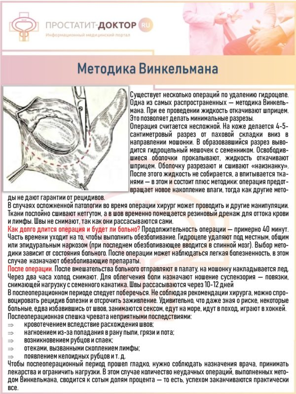 Методика Винкельмана