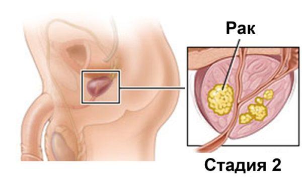 Вторая стадия рака простаты