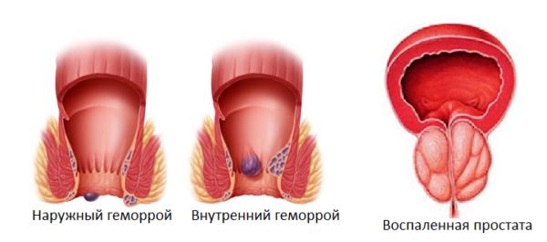 Упражнения Кегеля помогают уменьшить проявления геморроя и простатита