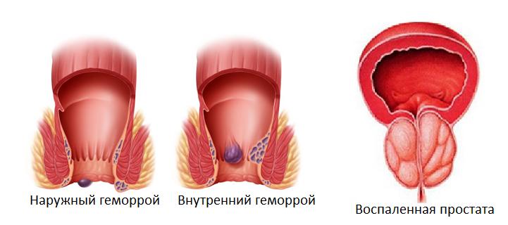 Внутренний Геморрой Упражнения