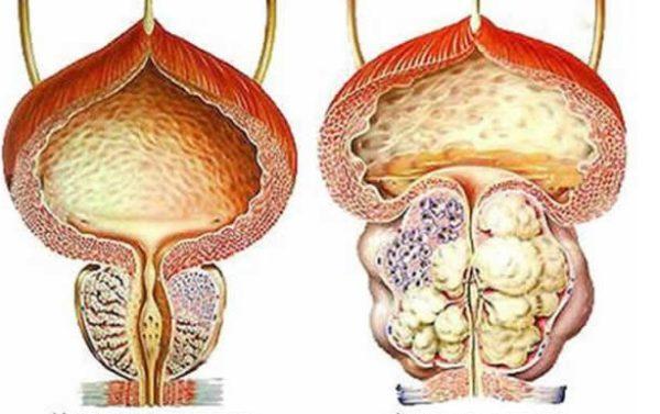 Размеры опухоли варьируются в зависимости от стадии и формы ДГПЖ