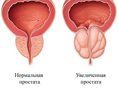 Методы лечения доброкачественной гиперплазии предстательной железы