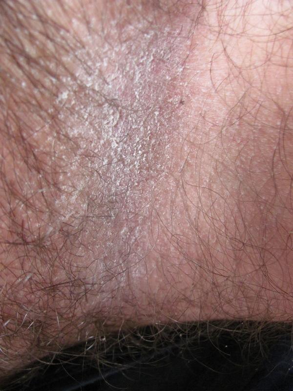 Грибок – патология, развитие которой можно увидеть невооруженным глазом