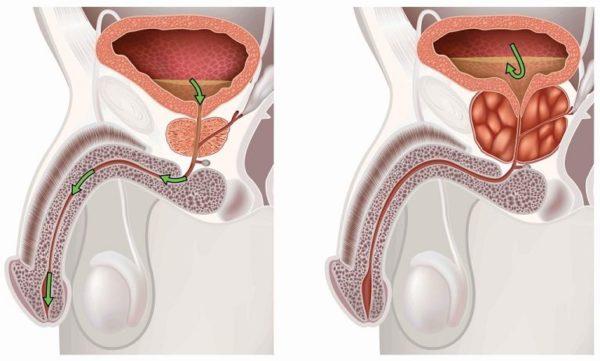 Воспаление простаты - одно из самых распространенных мужских заболеваний