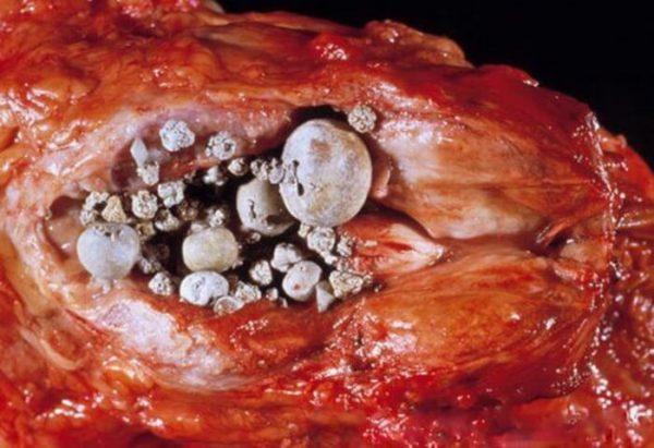 Заболеваните характеризуется образованием камней в предстательной железе
