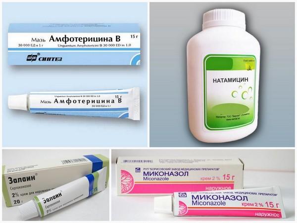 Мази и таблетки должны помочь избавить пациента от микоза