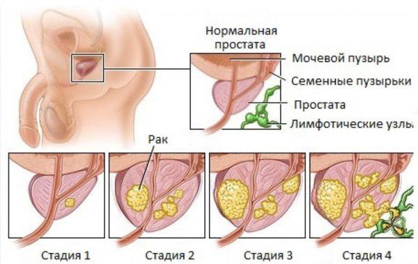 От простаты патология может распространиться в близлежащие ткани