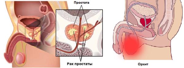 Упражнения Кегеля противопоказаны при острых воспалительных процессах и наличии раковых опухолей