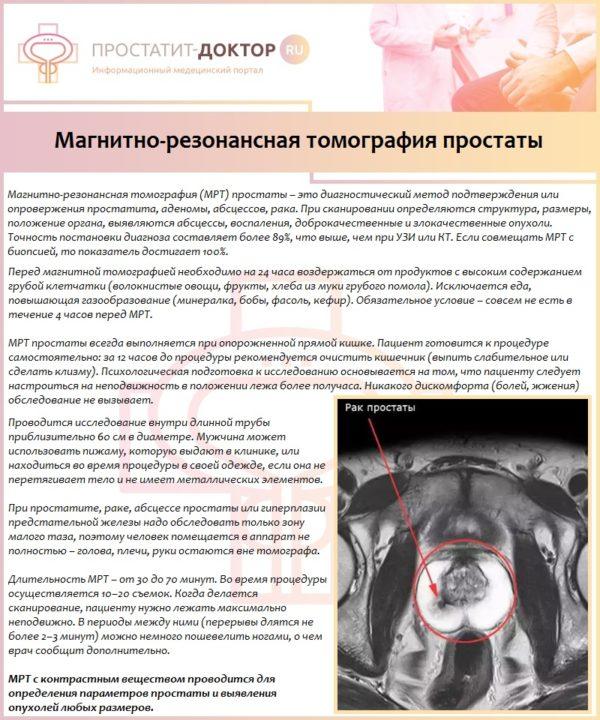Магнитно-резонансная томография простаты