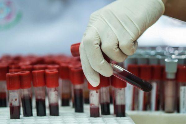 Анализ крови на рак простаты