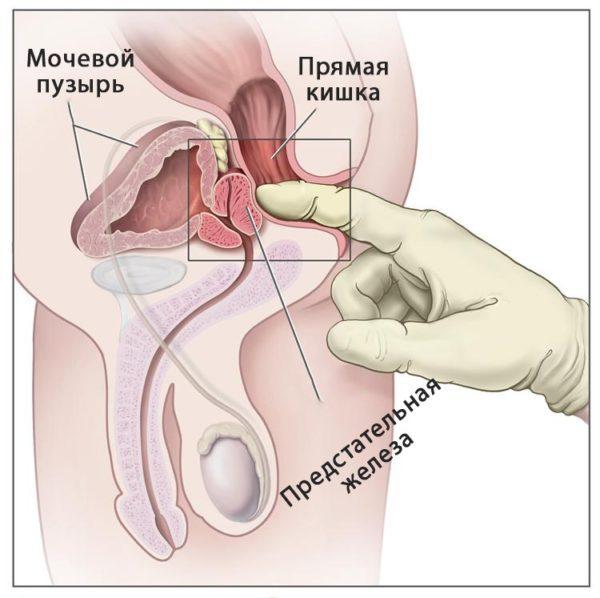 Не стоит бояться пальцевого ректального обследования