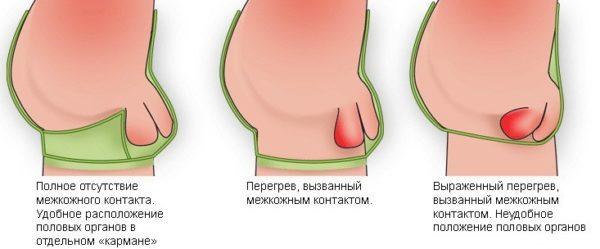 Одной из мер профилактики заболеваний половой системы является правильный выбор нижнего белья