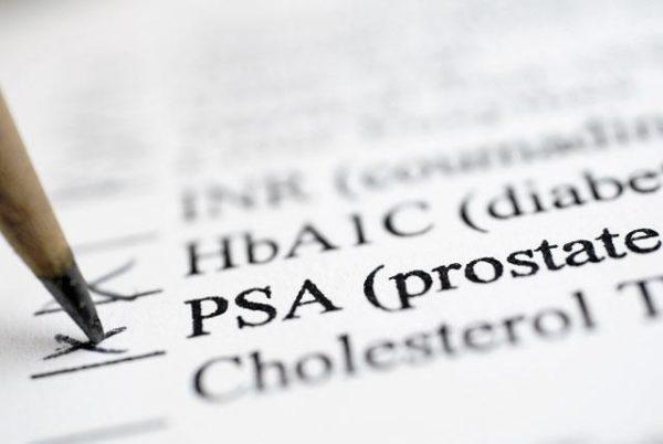 Ученые доказали, что в эякуляте женщины есть простат-специфический антиген, который у мужчин вырабатывается простатой
