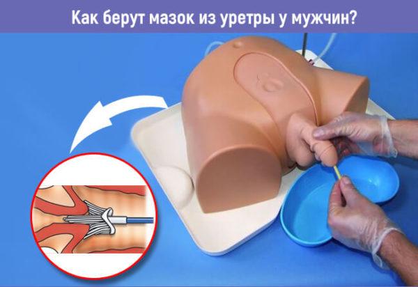 У мужчин биоматериал берут из уретры