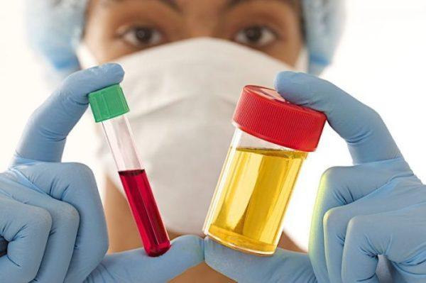 Анализы мочи и крови необходимы в первую очередь