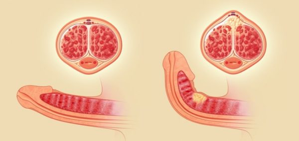 К нагноению кисты яичка может привести кавернит