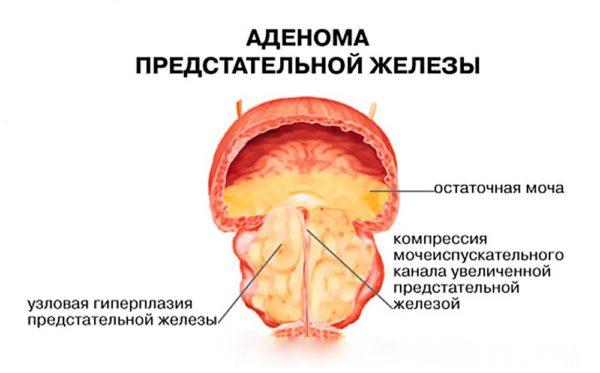 Важно отличать рак и аденому простаты