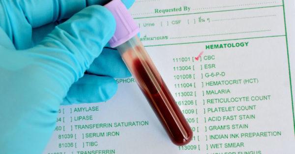 В качестве дополнительного исследования женщине назначат анализ крови на инсулин