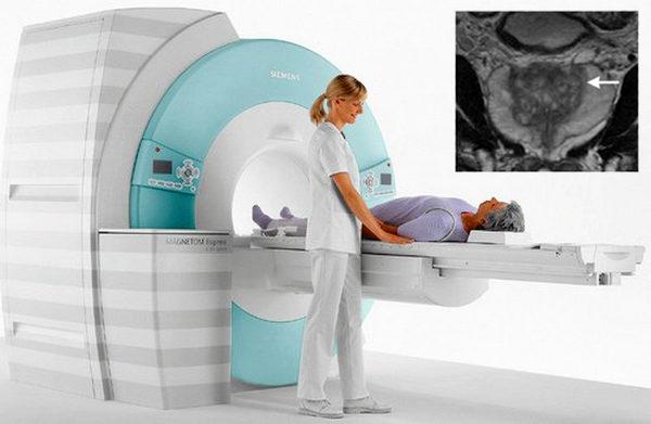 МРТ простаты необходимо для обнаружения рака простаты