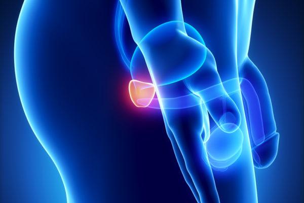 Выделяют несколько типов простатита