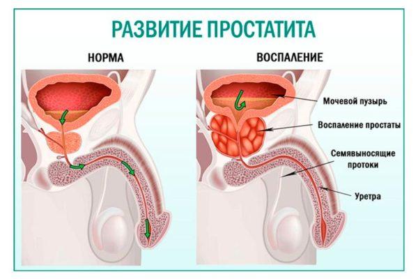 Простатит можно опознать уже на ранней стадии развития