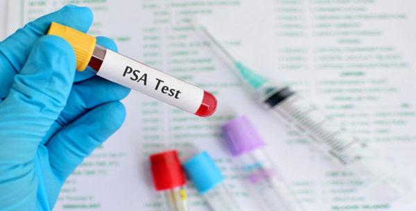 Анализ ПСА назначается при подозрении на ЗППП