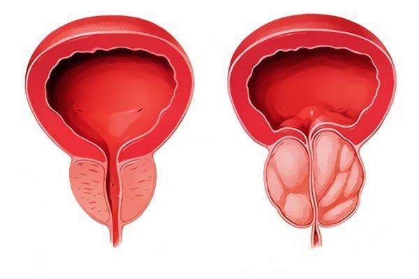 Высокий уровень ПСА наблюдается и у больных аденомой простаты либо любой формой простатита