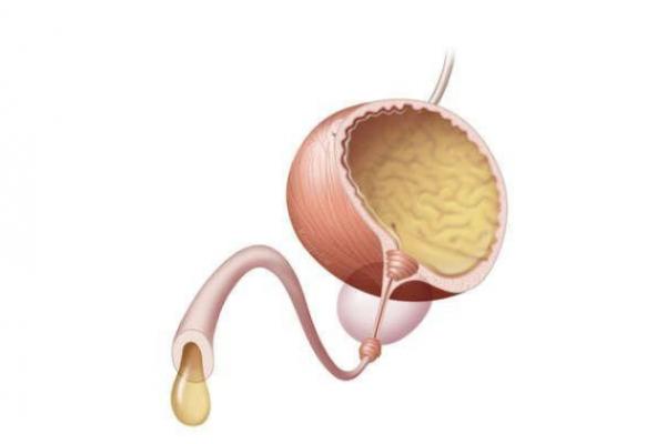 При уретрите у мужчин также могут наблюдаться желтые выделения