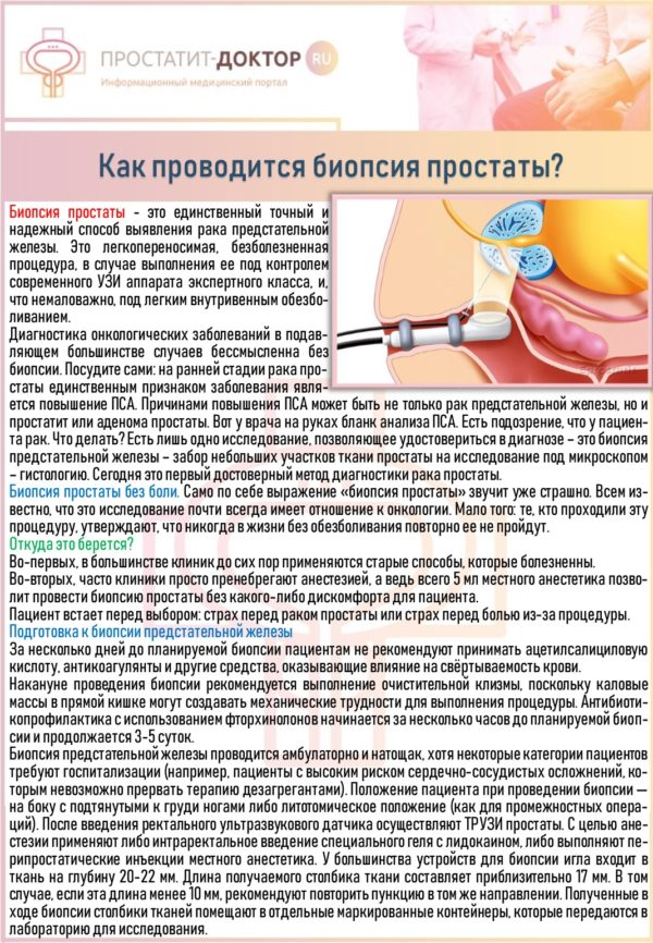 Как проводится биопсия простаты?