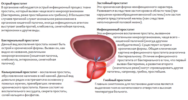 Формы и виды простатита