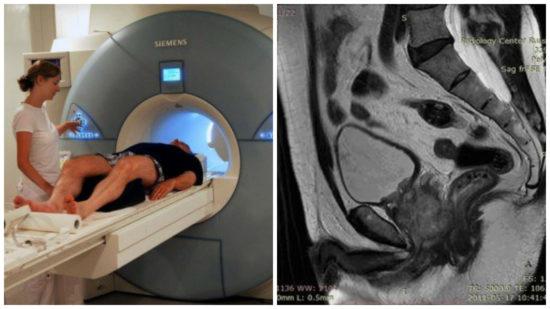 Процедура МРТ простаты