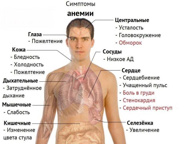 Симптомы анемии