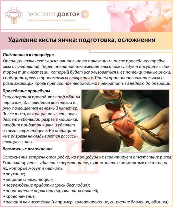 Удаление кисты яичка: подготовка, осложнения