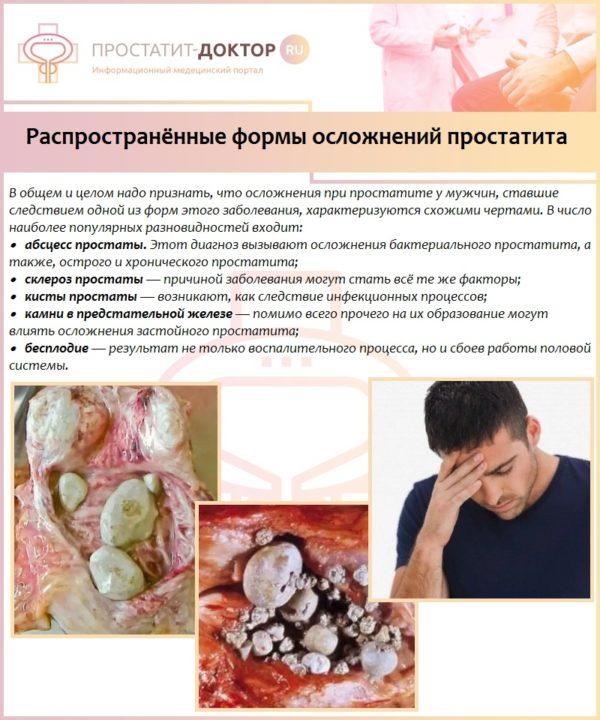 Распространённые формы осложнений простатита