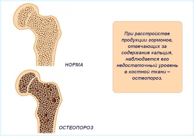 Кость в норме и с остеопорозом