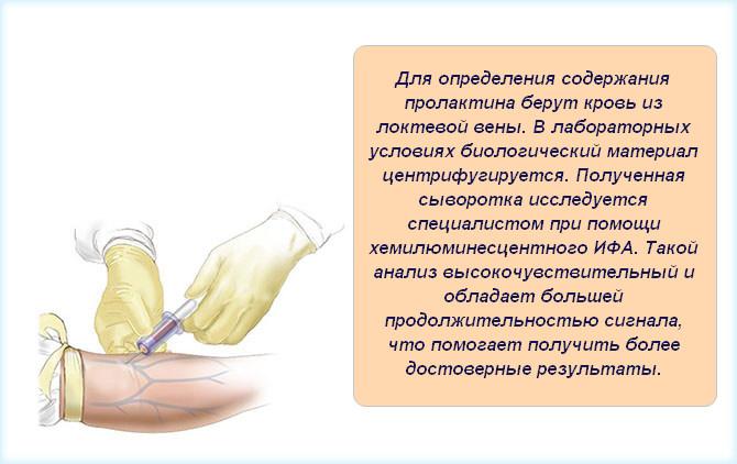 Забор крови из локтевой вены