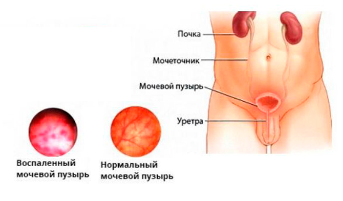 Воспаленный мочевой пузырь