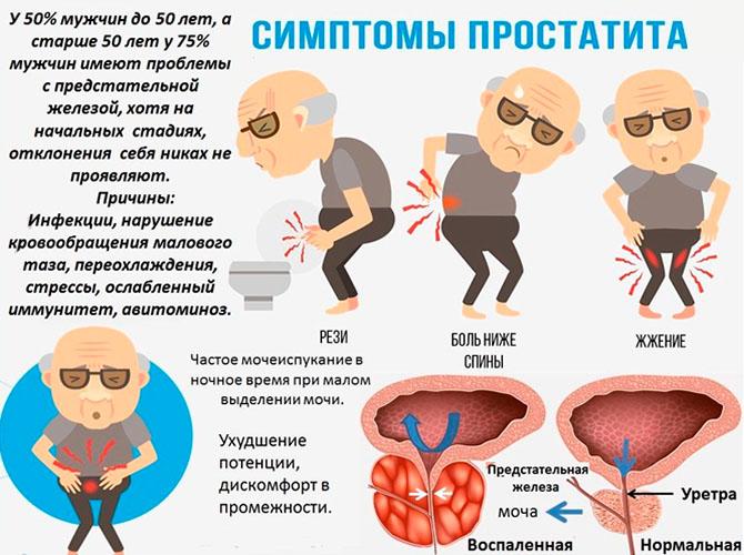 простатиты у мужчин признаки операция