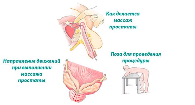 Выполнение массажа предстательной железы