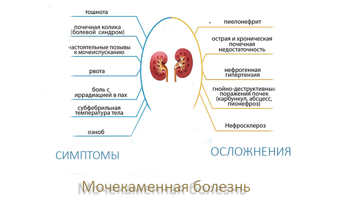 Симптомы мочекаменной болезни