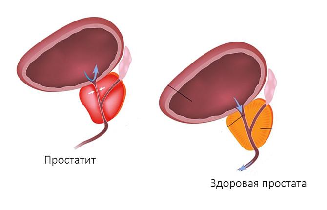 Простатит и здоровая простата
