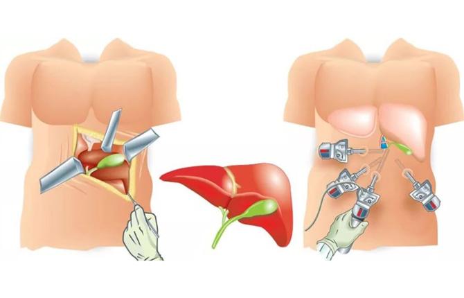 Лапароскопия и классическая полостная операция