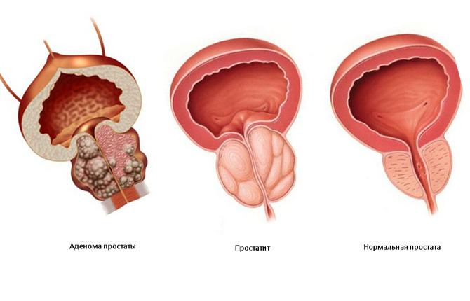 Магнитотерапия при аденоме простаты